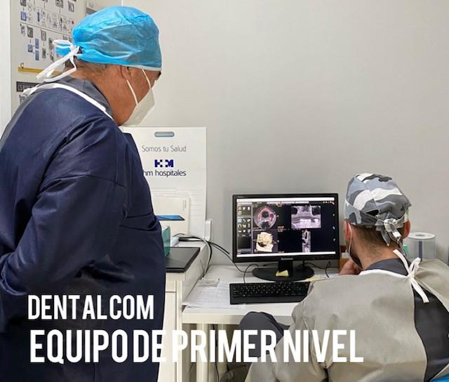 Cuáles son los mejores implantes dentales